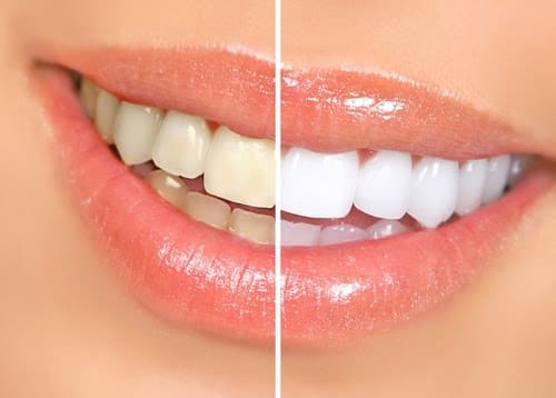 Teeth Whitening Orlando Florida