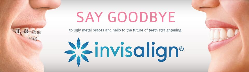 Invisalign for Teens and Adults Orlando Florida